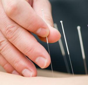 Cancer Acupuncture Holistic Care Dr. He -Acupuncture treatment